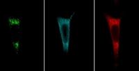 Analyse komplexer Proteininteraktionen