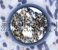 Neue Erkenntnisse zur Entstehung und Therapie von Krebs: Bislang unbekannte Proteinvariante entdeckt