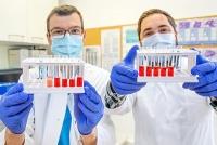 Blutuntersuchungen: Neue Werte für bessere Diagnosen