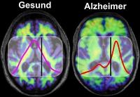 Bluttest zeigt früh das Alzheimer-Risiko an