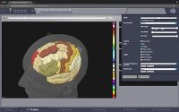 Das virtuelle Gehirn – individuelle Patientendaten ermöglichen detaillierte Simulationen für das Studium der Gehirnfunktionen