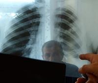 Weltweit einmalig: Korrekte Diagnose der Lungentuberkulose in nur drei Tagen