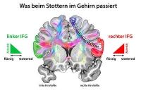Stottern: Stoppsignale im Gehirn verhindern flüssiges Sprechen