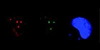 """Wirkstoff hilft """"Mondschein-Zellen"""" bei DNA-Reparatur"""