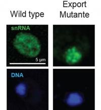 Forscher entdecken Mechanismus, der Schäden durch verkürzte Proteine verhindert