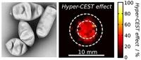 Neuartiges Kontrastmittel verspricht tiefe Einblicke in das Schicksal von Zellen