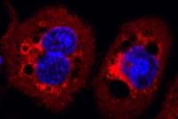 Neue Funktion von antibiotikaresistenten Bakterien entdeckt