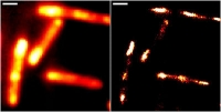 Mit höchster Auflösung: RNA-Bildgebung in lebenden Zellen