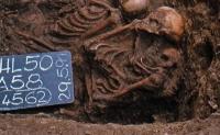 Risikogen begünstigte Paratyphus im mittelalterlichen Europa