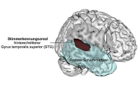 Wo die Stimmerkennung im Gehirn sitzt