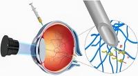 Nanoroboter steuern erstmals durchs Auge