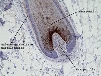 Forscher entdecken neues Gen für Haarverlust