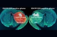 Hirntumoren: Typische Mutation in Krebszellen legt das Immunsystem lahm