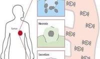 Flüssigbiopsie: Tumorgenetik aus dem Blut